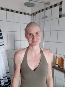 mein persönlicher Haarverlust am 6.Aug 2019