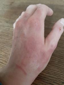 Nebenwirkungen: Verbrennungen an den Händen